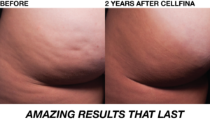 %Cellfina NYC %Cellulite treatment in NYC, Manhattan, NY with Cellfina.  Top doctor.